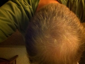 "profollica hair loss treatment ""after 60 days"" picture"