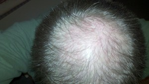 picture of hair before using Profollica